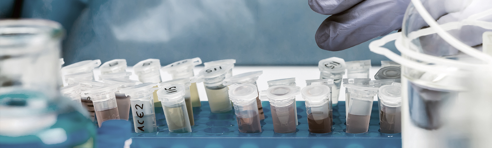 Covid-19 Wastewater testing